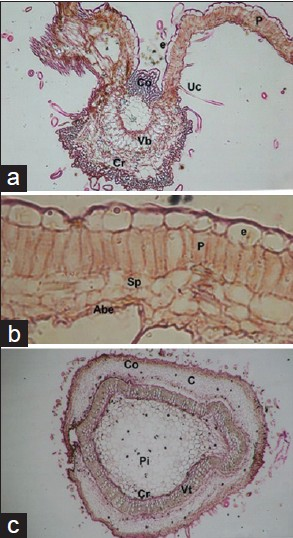 Figure 2: Heliotropium peruvianum (leaf and young stem). (a) TS of leaf at midvein, ×126, (b) TS of leaf lamina, ×521, (c) TS of stem, ×74 (P: Palisade, e: epidermis, Uc: Unicellular conical hair, Co: Collenchyma, Vb: Vascular bundle, Cr: Sphaeraphidal crystals, Sp: Spongy parenchyma, Abe: Abaxial epidermis, C: Cortex, Pi: Pith, Vt: Vascular tissue)