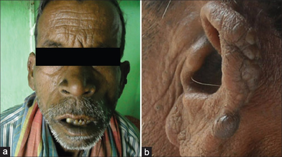 Figure 4: (a) After treatment no infiltration and macular patch seen on face. Appearance of face looks normal; (b) After treatment ear lobe looks inactive, nodules are very small and dry