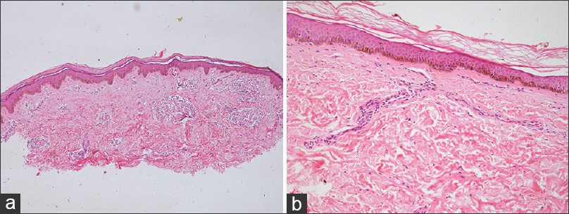 Figure 4: (a) Low power view of skin biopsy of a BT patient showing presence of multiple granuloma in the subepidermal region (H and E). (b) Extensive reduction in granuloma size. Cellular collection in the form of a streak and absence of infiltration around skin appendages are noted (H and E)