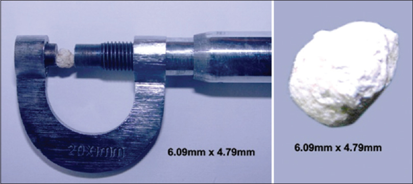 Figure 3: Stone measurement (6.09 mm × 4.79 mm): Measurement of the stone expelled from the right mid-ureter
