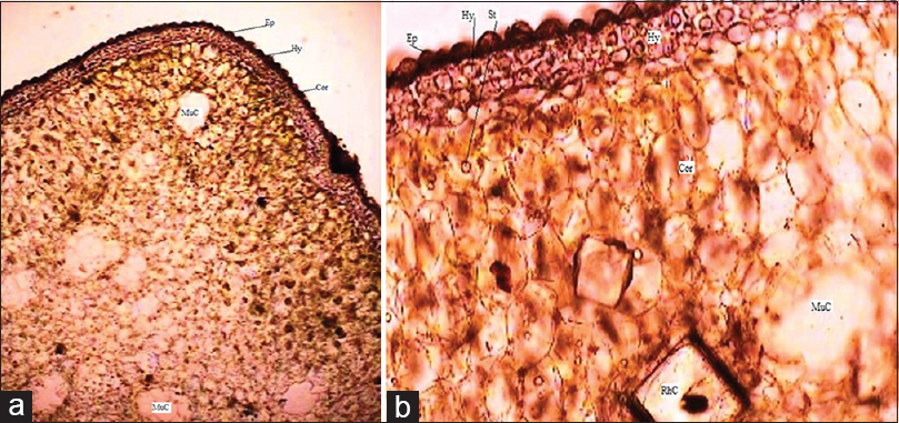 Figure 2: (a) Transection of stem through ridge. (b) Outer cortex of stem with large rhomboidal crystal