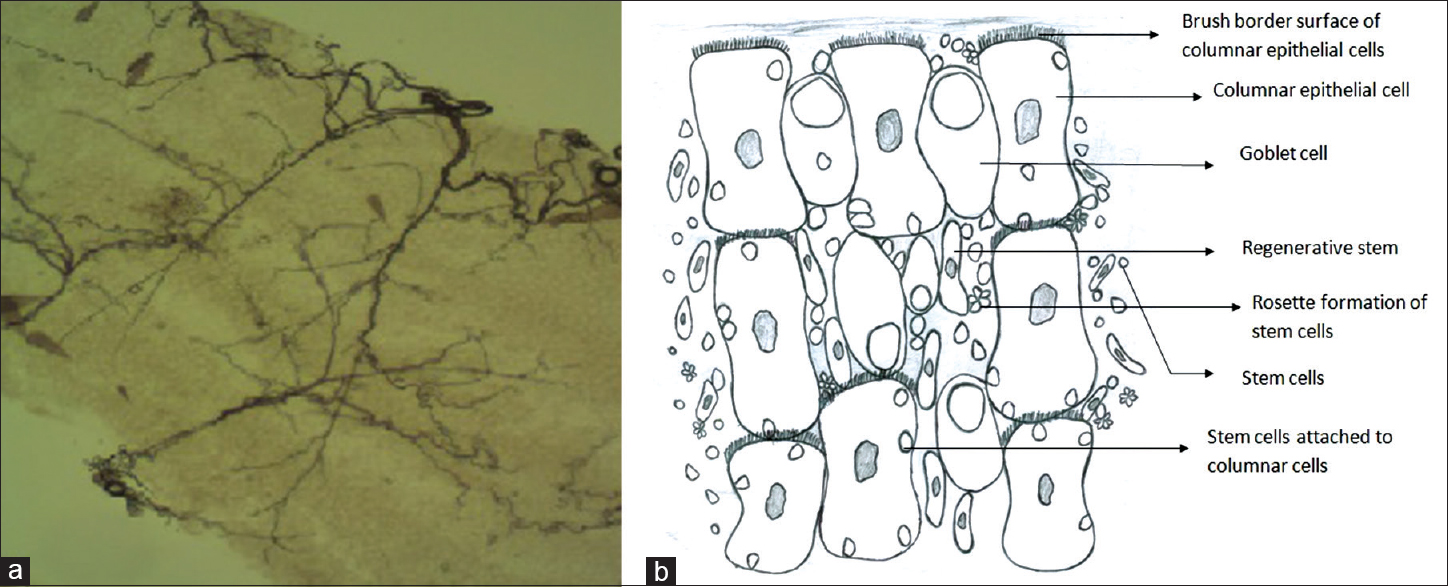 Figure 3: (a) Tracheoles were commonly found on the surface of midgut as branching tubules (×400). (b) Pseudostratified cellular morphology of different cells on midgut surface of <i>Aedes albopictus</i>